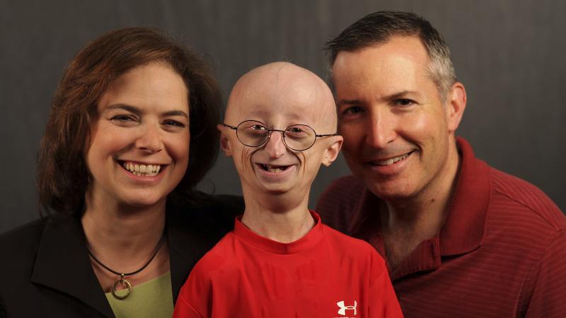 progeria_gallery_1