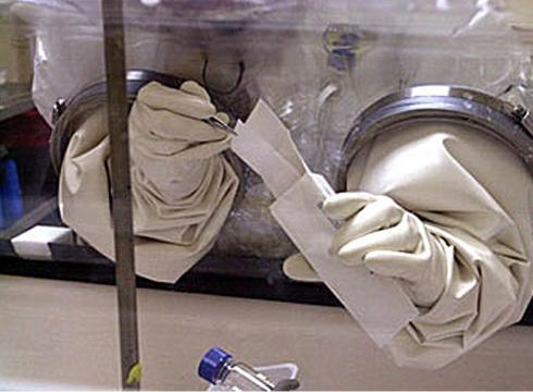 anthrax lab2
